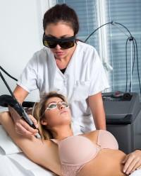 laser epilation aisselle 2