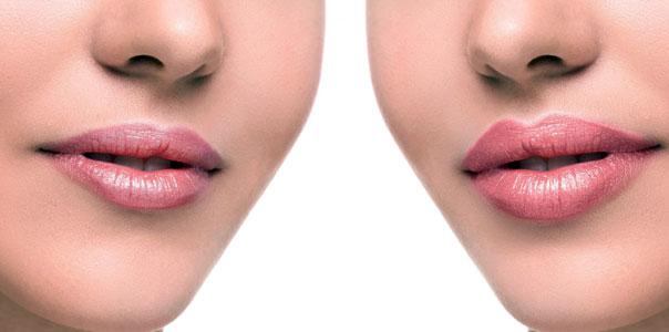 Injection des lèvres à l'acide hyaluronique à Paris - Victoire haussmann