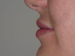 injection lèvres après