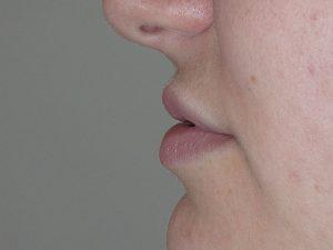injection lèvres avant